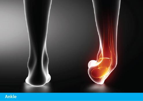 Achillies Clinic Ankle Treatments