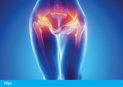 Achillies Clinic Hip Treatments