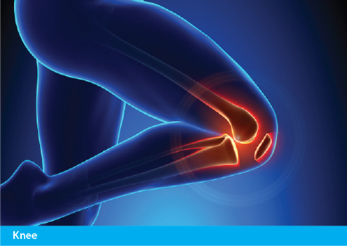 Achillies Clinic Knee Treatments