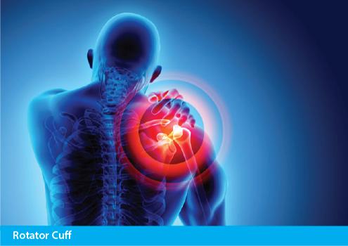 Achillies Clinic Rotator Cuff Treatment