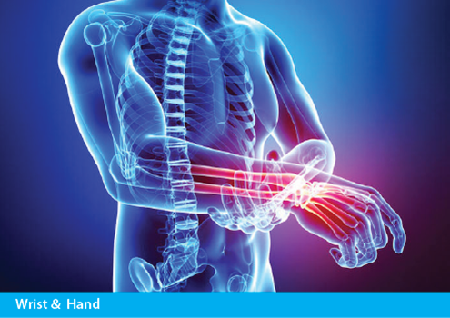 Achillies Clinic Wrist & Hand Treatment